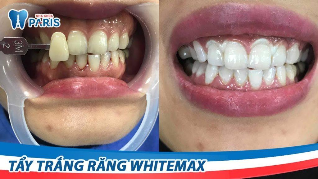 Trước và sau khi tẩy trắng răng Whitemax