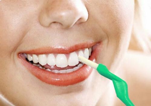 Nguyên nhân ê buốt răng sau khi tẩy trắng và cách khắc phục vĩnh viễn 3