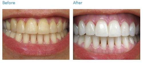 Nên tẩy trắng răng bằng phương pháp nào tốt và có độ bền cao nhất? 1