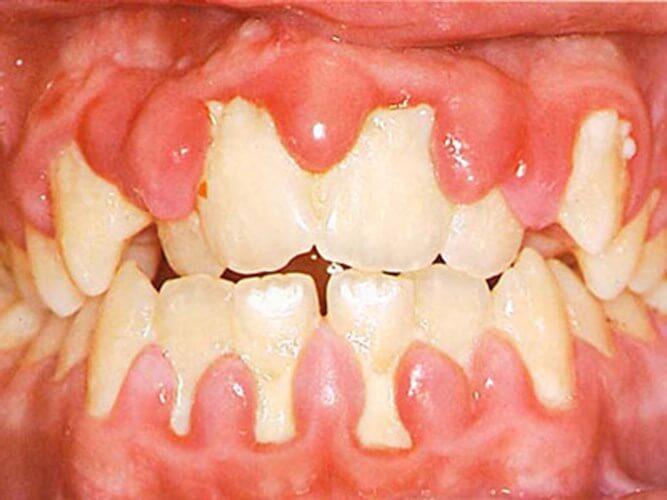 Tổng hợp những nguyên nhân gây hôi miệng phổ biến nhất 1