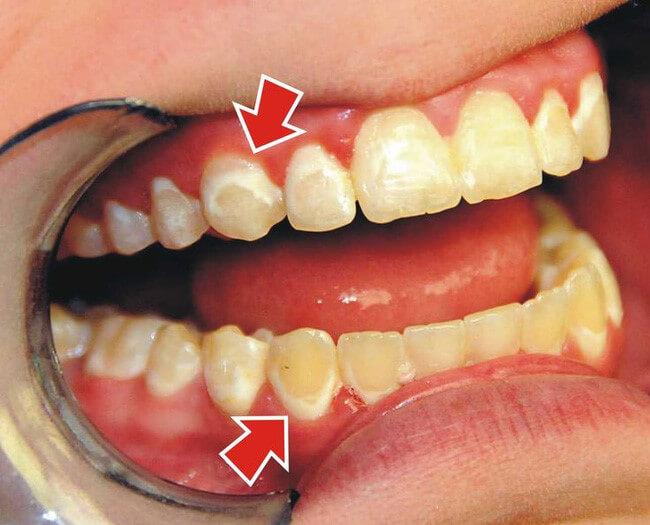Tẩy trắng răng và tác hại bạn không lường trước