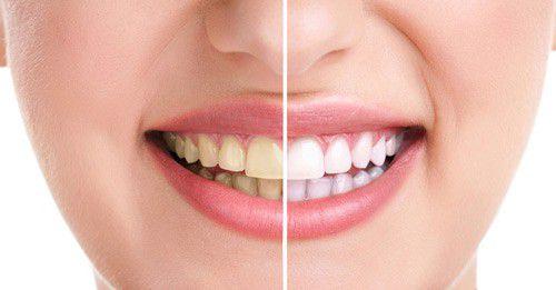 Bao lâu tẩy trắng răng 1 lần là hợp lý nhất?