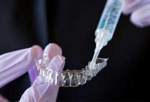Quy trình tẩy trắng răng bằng máng tại nhà.
