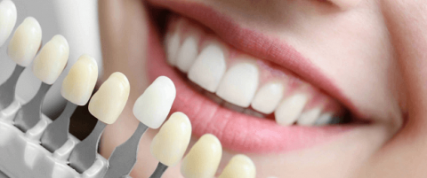 Quy trình tẩy trắng răng tại nha khoa Paris được thực hiện nghiêm ngặt, cẩn thận.