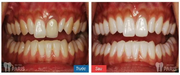 Bí quyết giúp làm trắng răng bằng trà xanh 4