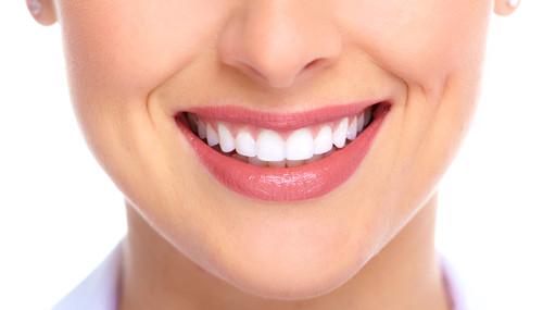 Tẩy trắng răng bằng laser có hại không? Bác sỹ chuyên gia tư vấn] 2