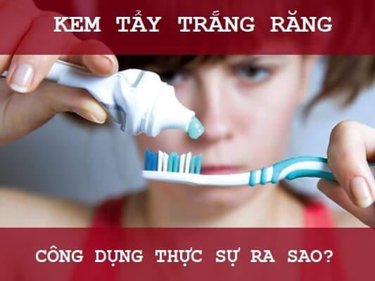 Kem Tẩy Trắng Răng tại nhà & 5 biến chứng có hại khi dùng sai cách 2
