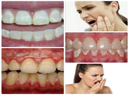 Kem Tẩy Trắng Răng tại nhà & 5 biến chứng có hại khi dùng sai cách 3