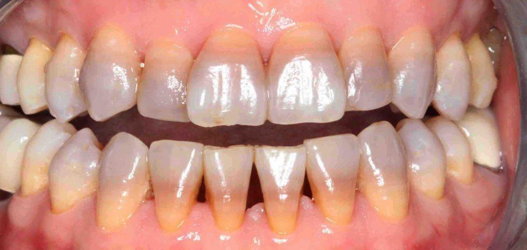 Nên tẩy trắng hay tráng men răng để hàm răng trắng sáng? 1