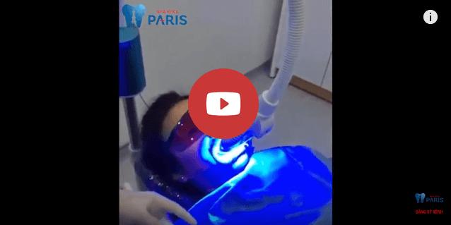 Công nghệ tẩy trắng răng White Max AN TOÀN & MỚI nhất 2018 5