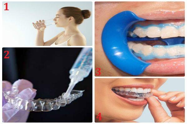 Tìm hiểu từ A - Z về phương pháp làm máng tẩy trắng răng tại nhà 2