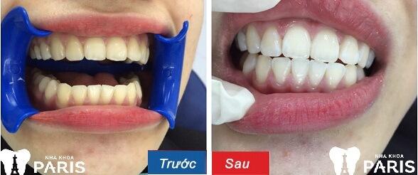 Khách hàng trải nghiệm công nghệ tẩy trắng răng WhiteMax tại nha khoa Paris_Ảnh 2