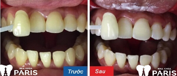 6 Bước làm cách nào để răng trắng sáng hơn chỉ trong 1h? 3