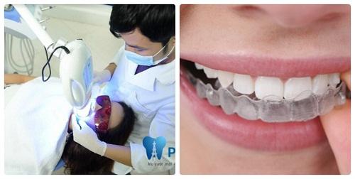 Tẩy trắng răng kết hợp được thực hiện như thế nào? 1