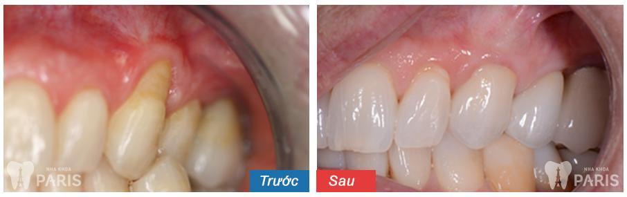 Cách cạo vôi răng 12