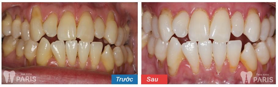 Cách cạo vôi răng 11