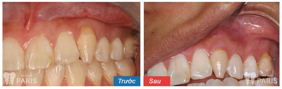 Cách cạo vôi răng 13