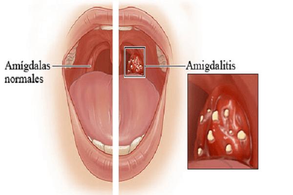 Hôi miệng sau khi cắt amidan – Nguyên nhân và cách điều trị 1