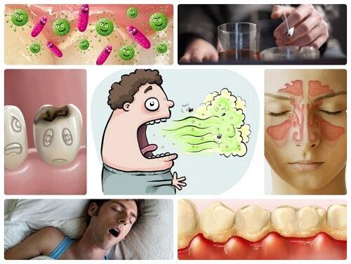 Hôi miệng buổi sáng – Nguyên nhân và cách điều trị hiệu quả nhất 1