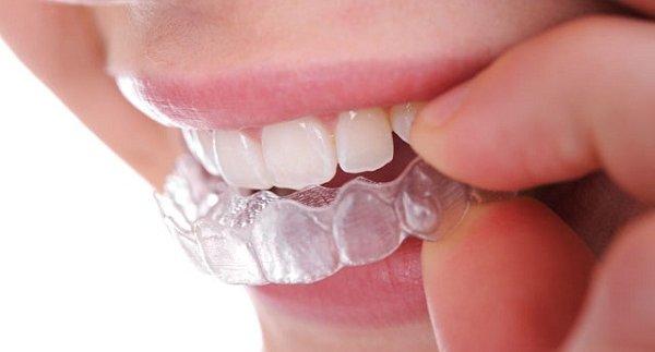 Cách làm máng tẩy trắng răng tại nhà đơn giản hiệu quả nhất 6