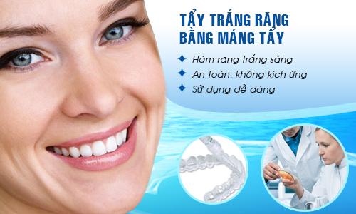Cách làm máng tẩy trắng răng tại nhà đơn giản hiệu quả nhất 1