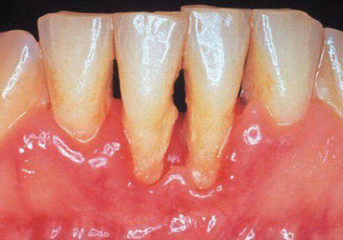 Hôi miệng sau khi nhổ răng khôn - Nguyên nhân và cách chữa trị 3