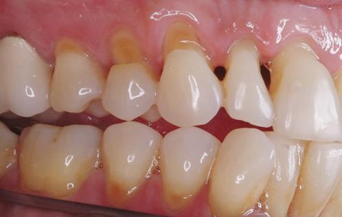 Nguyên nhân & Cách khắc phục ê buốt răng sau khi tẩy trắng AN TOÀN 2