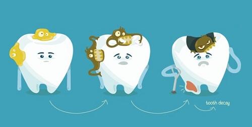 Nguyên nhân & Cách khắc phục ê buốt răng sau khi tẩy trắng AN TOÀN 3