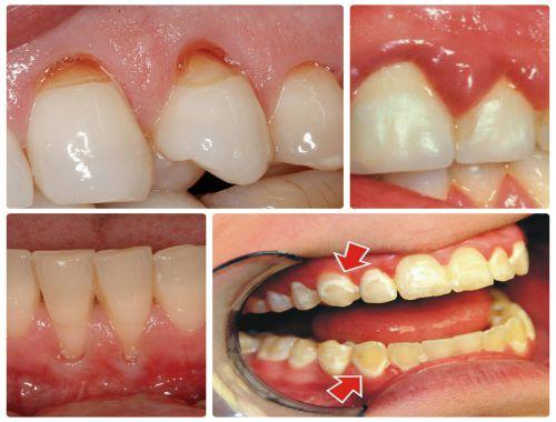 Miếng dán trắng răng có HẠI không? Có gây ảnh hưởng gì không? 2