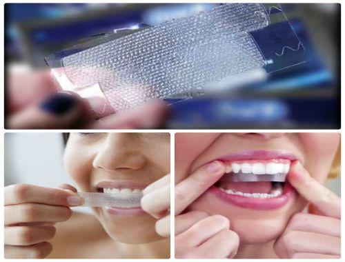 Sử dụng miếng dán trắng răng có hại không và ảnh hưởng gì?