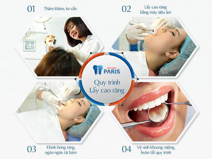 Quy trình lấy cao răng an toàn, không đau