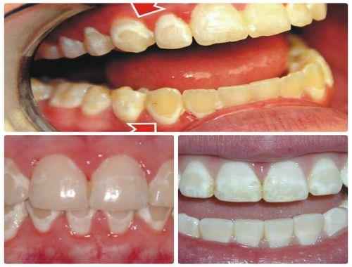 Mối nguy hại khôn lường từ việc sử dụng bột tẩy trắng răng sai cách 1