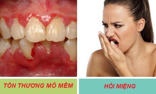 Mối nguy hại khôn lường từ việc sử dụng bột tẩy trắng răng sai cách 3
