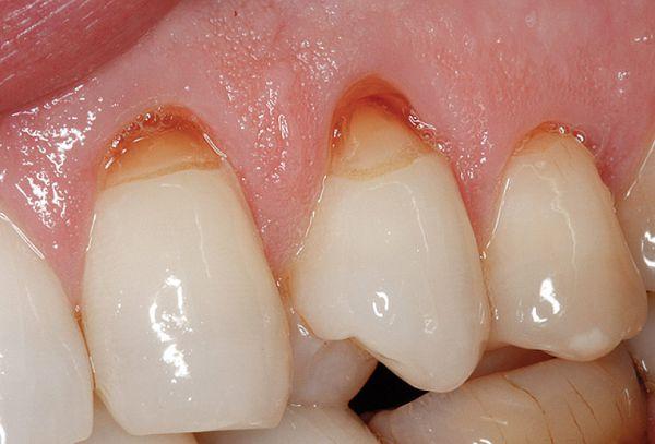 Mối nguy hại khôn lường từ việc sử dụng bột tẩy trắng răng sai cách 2