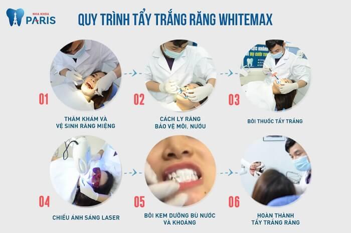 Làm cách nào để răng trắng sáng hơn chỉ với 1 giờ? 2
