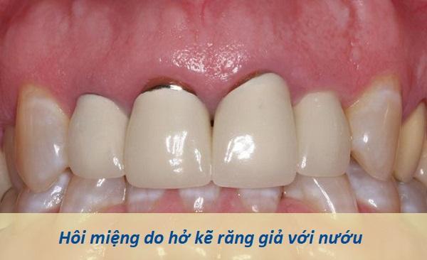 Liệu có cách điều trị tình trạng hôi miệng vì răng giả? 1