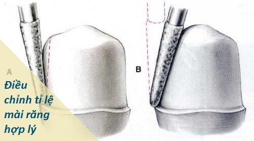 Liệu có cách điều trị tình trạng hôi miệng vì răng giả? 3