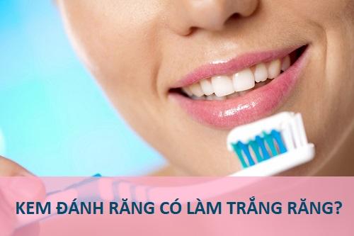 Cách làm trắng bằng kem đánh răng thực sự có hiệu quả không? 1