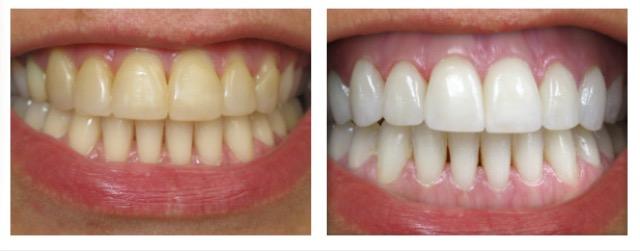 Đâu là cách làm trắng răng do hút thuốc lá HIỆU QUẢ nhất? 5