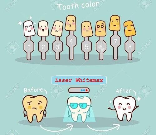 Tẩy trắng răng bằng laser WhiteMax là giải pháp tốt hơn tráng men