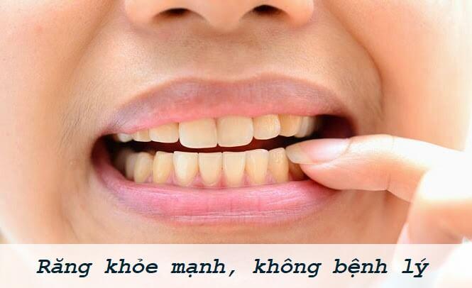 Tẩy trắng răng giá bao nhiêu tiền? [Bảng giá chi tiết] 2
