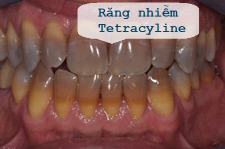 Nguyên nhân và cách tẩy trắng răng bị nhiễm Tetracyline hiệu quả 1