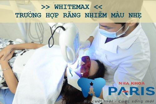 Nguyên nhân và cách tẩy trắng răng bị nhiễm Tetracyline hiệu quả 2