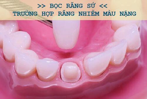 Nguyên nhân và cách tẩy trắng răng bị nhiễm Tetracyline hiệu quả 3