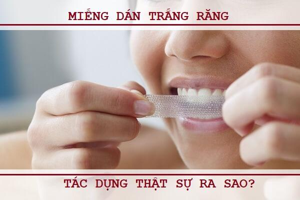 Cách phát huy hết tác dụng của miếng trắng răng mà bạn cần biết 1
