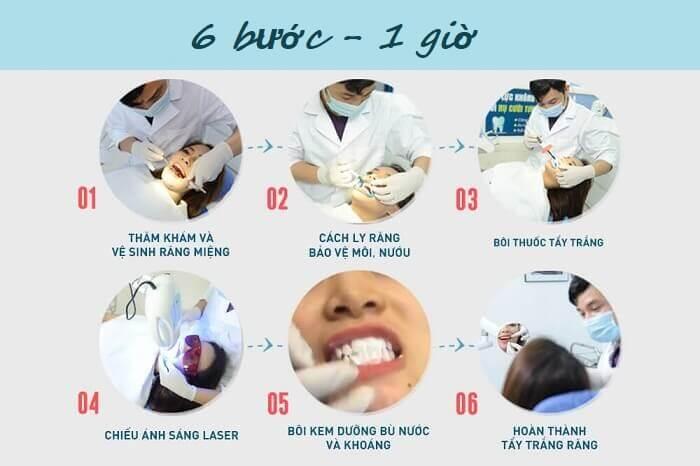 Cách phát huy hết tác dụng của miếng trắng răng mà bạn cần biết 3