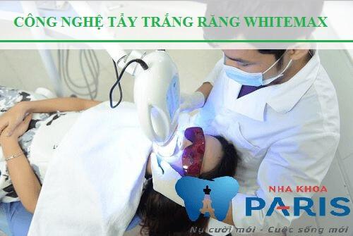 Tổng hợp những lưu ý khi dùng miếng dán trắng răng không thể bỏ qua 1