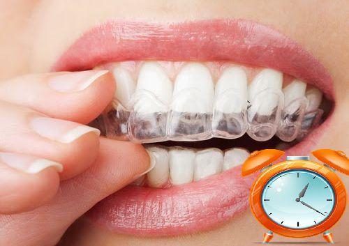 Giải đáp thắc mắc: Đeo máng tẩy trắng răng mấy giờ? 1