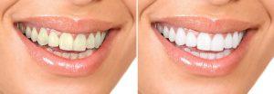 Thực hư về miếng dán làm trắng răng có hiệu quả như lời đồn? 3