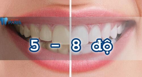 phương pháp tẩy trắng răng 4